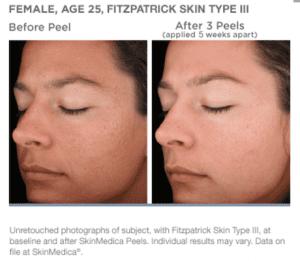 nourishing facial peel