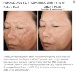skinmedica facial peel