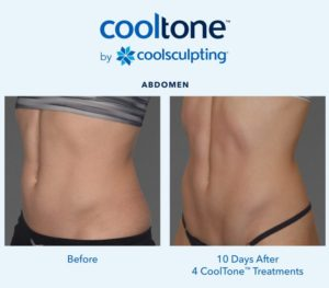 Cooltone Before and After