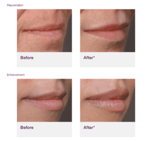 Juvéderm Volbella Before and After