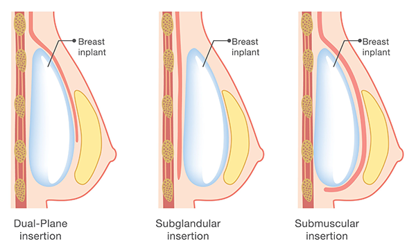 What is a Dual Plane Breast Augmentation?